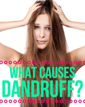 All About What Causes Dandruff  (also for more info go to mayoclinic.com and type dandruff causes)