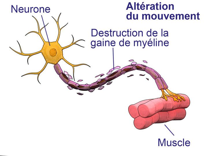 La sclérose en plaques est une maladie auto-immune qui se caractérise par une destruction progressive des neurones. A ce jour, aucun traitement n'est efficace pour lutter contre les formes progressives de la maladie. Toutefois, des études sont en cours pour lui trouver ...