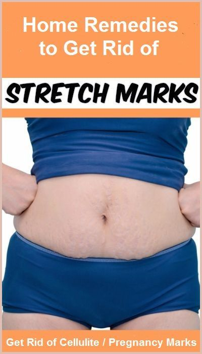 Home Remedies For Stretch Marks After Pregnancy Pregnancy Weight
