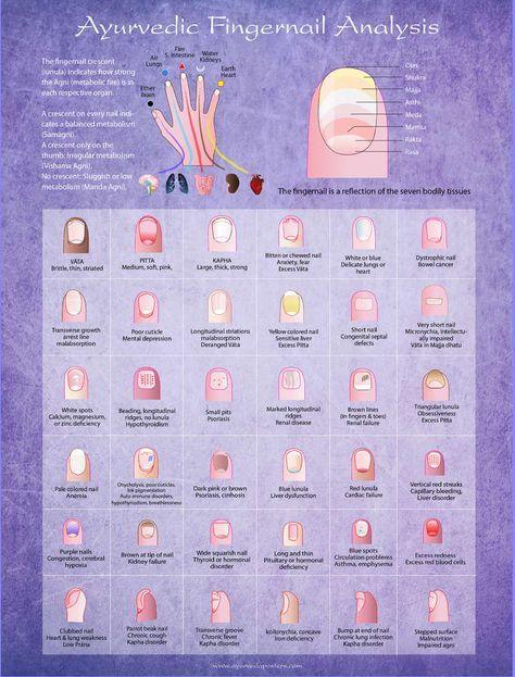 Ayurvedic Fingernail Analysis Poster