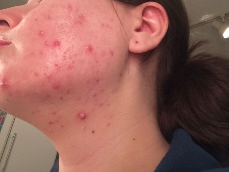 I wrote a blogpost about my journey on Accutane! Before and after pics included. www.pastelwhimsy.com