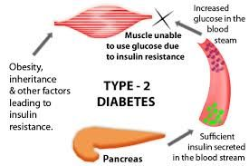Best Approach to the Prevention and Treatment of Diabetes Mellitus Type 2