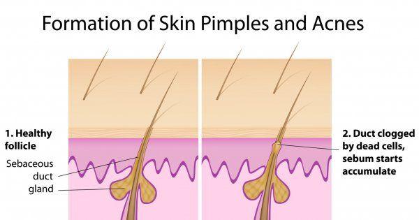 How to avoid pimples www.hafana.com