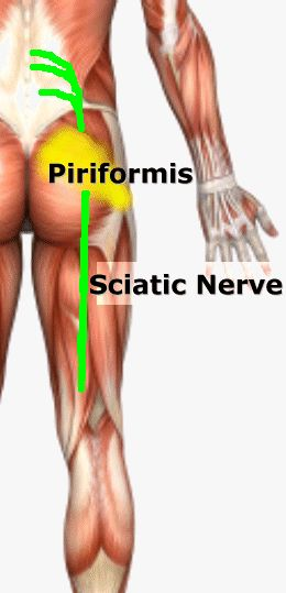 Cause of Sciatica: Piriformis Syndrome