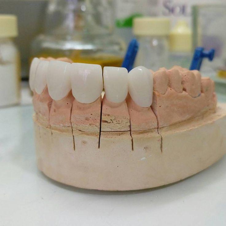 Dental Assistant Duties List%0A  dentalstudent  teeth  dental  odontologia  dentistry  braces  dentalschool   dentalassistant