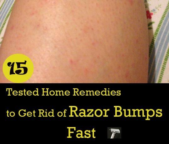 how to clear razor burn fast