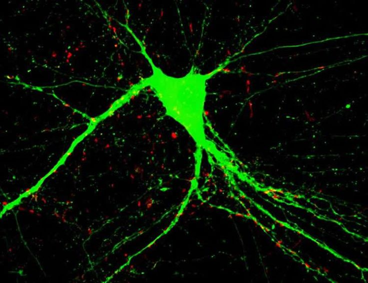 Abnormal Behavior of Two Genes Possible Cause of Schizophrenia
