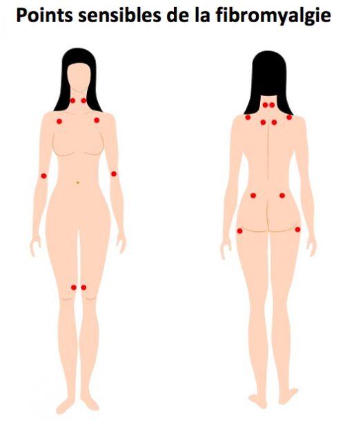 points sensibles fibromyalgie
