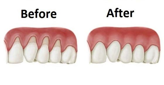 Viral Alternative News: Grow Back Your Receding Gums With The Help Of These Natural Remedies