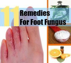 Foot fungus can occur in the form of toenail fungus. It can also occur as athlete's foot. Some causes of toenail fungus are abnormal skin ...