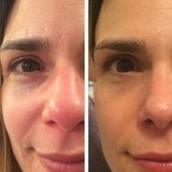 Facial Firming Gymnastics Used For A Non-Surgical Facelift