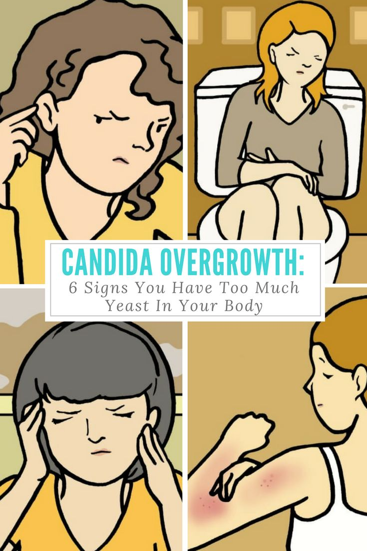 "Candida Overgrowth: 6 Signs You Have Too Much Yeast In Your Body - We all know about yeast infections, but did you know a ""candida"" overgrowth can reveal itself in many other uncomfortable ways? Luckily, there are lots of easy home remedies to treat this common condition — and every woman should know about them."
