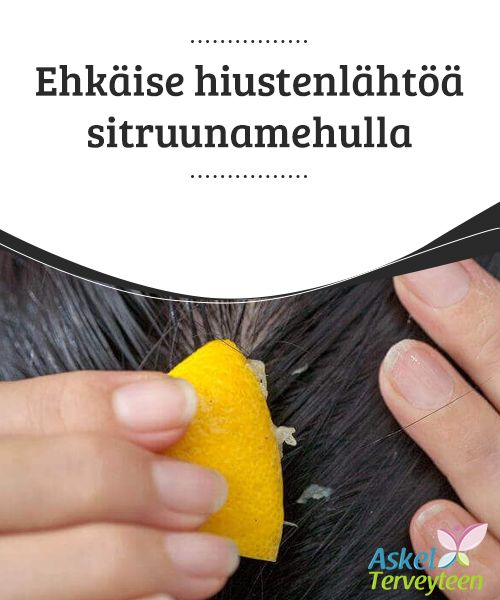 Ehkäise hiustenlähtöä sitruunamehulla   Hiukset ovat tärkeä osa fyysistä #ulkomuotoa ja kauniit hiukset välittävät #kantajastaan huolitellun, #miellyttävän kuvan.  #Kauneus