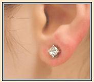 Nickel Allergy Rash with Earring