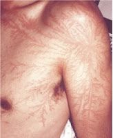 Nature's tattoo. Lichtenberg figure. Apparently after striking your ass with lightning, Mother Nature tattoo's you as well.