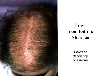 Does Female Androgenetic Alopecia really exist? or Low Local Estrone Alopecia Andrea Marliani Alopecia caused by insufficient local follicul...