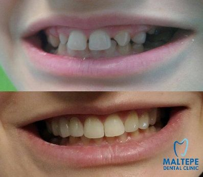 covering with crowns at a teenager denture
