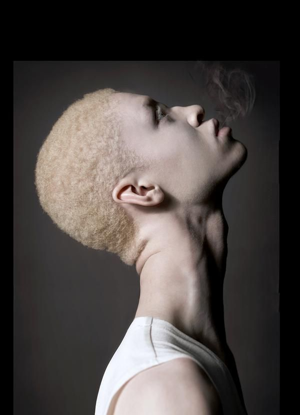 192 best Albino Beauty images on Pinterest