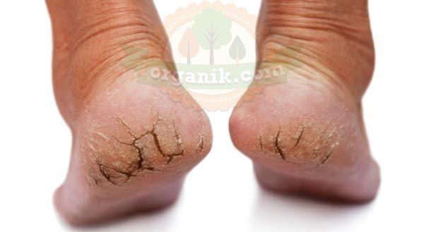Çatlak topuk derisi genellikle uzun sürek ayakta kalmak, rahatsız ayakkabılar giymek ya dasedef hastalığı nedeniyle cilt üzerinde baskıdan dolayı oluşur.