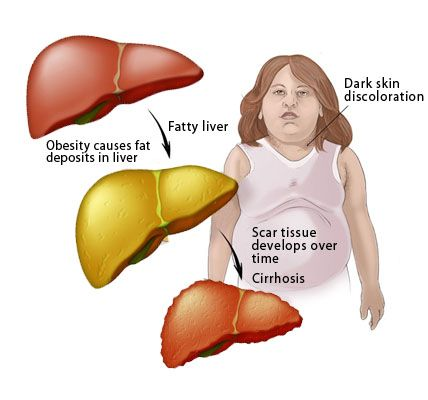 What is Fatty Liver? How would you know if you have a fatty liver and how to reverse it? Read Dr Sandra Cabot's research to learn more.