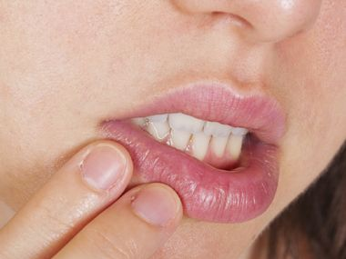 Read on to learn how to quickly heal a cold sore and prevent future outbreaks from occurring.