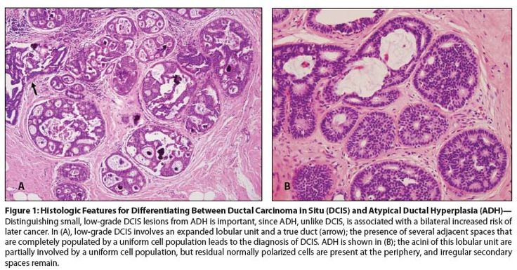 atypical ductal hyperplasia intraductal carcinoma - Google Search