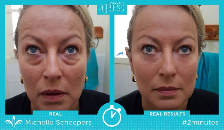 Learn how adding 2 minutes to your beauty routine can clear away eye bags, wrinkles, & more with Instantly Ageless! https://multibra.in/gz93b