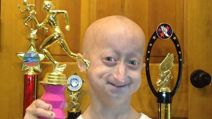 The Progeria Research Foundation's ONEpossible Campaign 2016