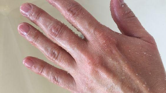 Peeling Hände