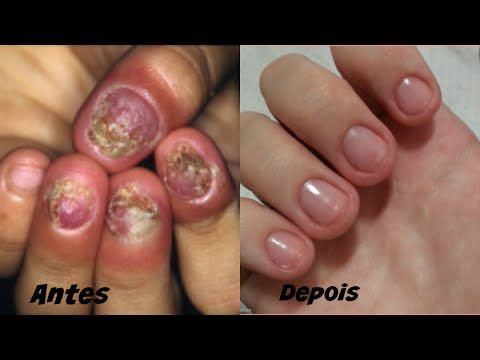 MATE FUNGOS e MICOSES nas UNHAS com estes 3 ingredientes! - YouTube