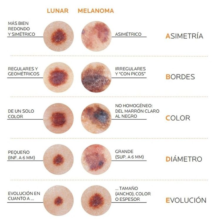 ¿Tienes cáncer de piel? Aprende a detectar los síntomas | Sentirse bien es facilisimo.com