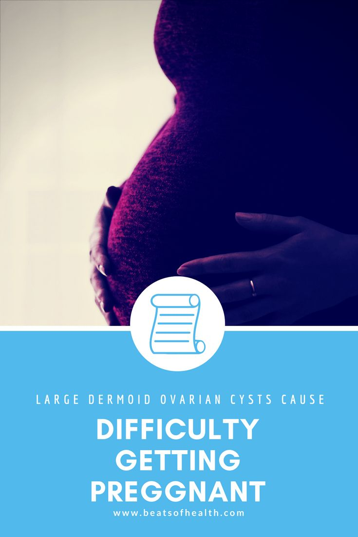 Can large ovarian cysts cause infertility?