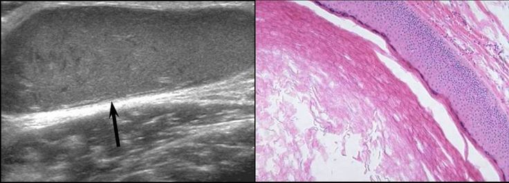 groin masses -   A 42-year-old man with epidermoid cyst. A. Longitudinal gray-scale sonography shows an ovoid-shaped, hypoechoic mass in the right groin (arrow). B. Photomicrograph of the histologic specimen shows a fibrous tissue lined by stratified squamous epithelium containing keratinous materials.