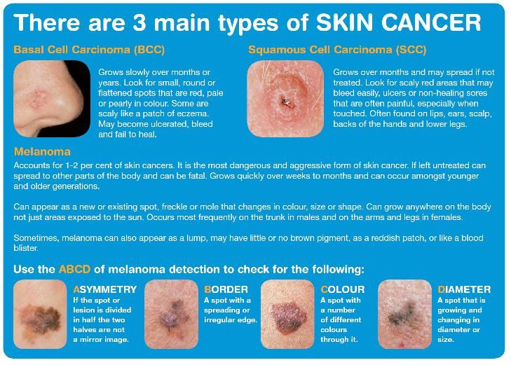 Skin Card Uci