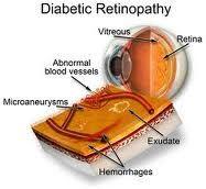Best Diabetic Retinopathy  Treatment in Jaipur,India by Experts doctors:- @ Prakash Nethralaya & Panchakarma Kendra