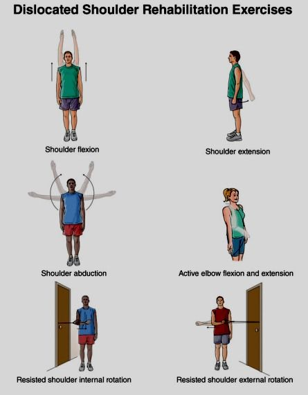 EXCLUSIVE PHYSIOTHERAPY GUIDE FOR PHYSIOTHERAPISTS: EXERCISE FOF SHOULDER DISLOCATION