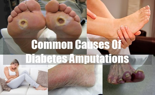 Gestational Diabetes Diagnosis >>> You can find out more details at the link of the image.