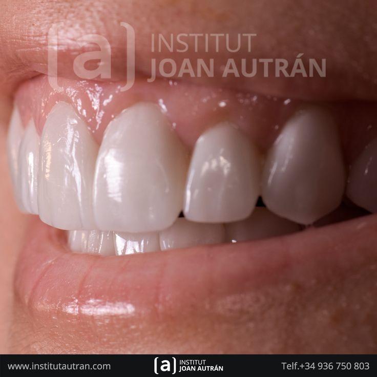 Carillas dentales Top Smile® Exclusivas del Dr. Joan Autrán