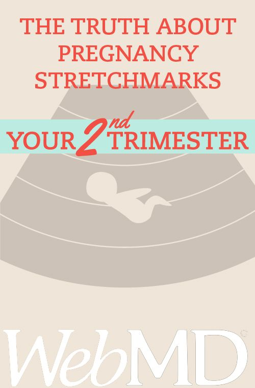Many things change after you have a baby: schedules, sleep time, and sense of freedom, to name a few.  Along with a changing schedule, there are the many physical changes you'll see. Chief among them is stretch marks. For many women, stretch marks are as much a part of having a baby as diapers and feedings.#pregnancy #StretchMarks
