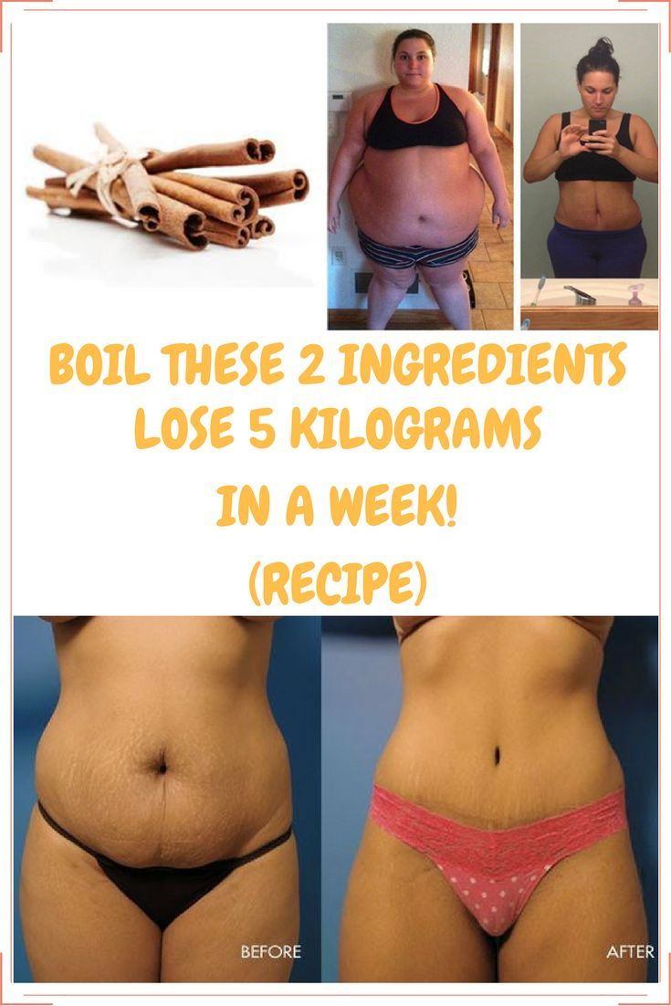 Boil These 2 Ingredients And Lose 5 Kilograms In A Week