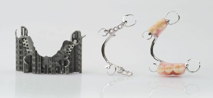 Stages of production for a laser sintered removable partial denture: Dental prosthesis directly after manufacturing, with support structures removed and surface polished, after completion (left to right-Image courtesy of EOS GmbH)