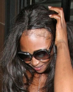 Naomi Campbell bald hairline
