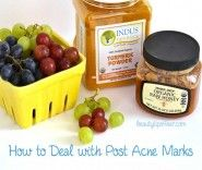 dealing-with-post-acne-marks
