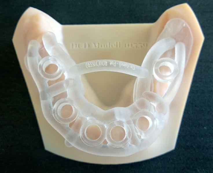 Novedoso modelo experimental para guía quirúrgica fabricada mediante impresión 3D al igual que el modelo de trabajo
