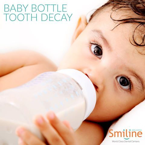 Never put your baby to bed with formula or juice overnight as 15% of children develop baby bottle tooth decay. #Children #Baby #Bottle #Tooth #Decay #Smiline