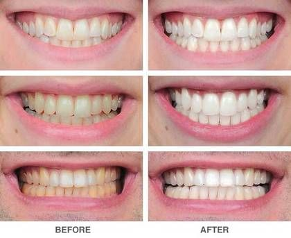 awesome Top 7 Teeth Whitening Myths and Truth you can Count On!