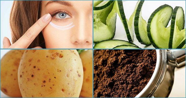 20 remedios naturales antiojeras