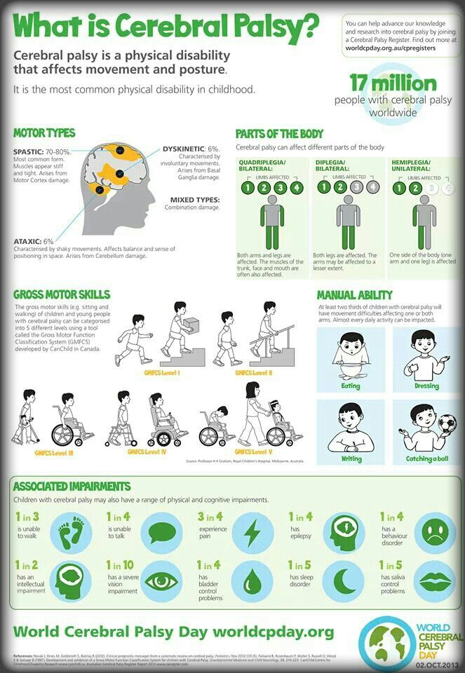 What is Cerebral Palsy http://www.stemcellshealthcare.com/what-is-cerebral-palsy.html