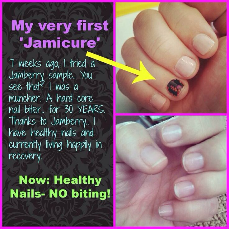 7 best Nail Biter images on Pinterest | Jamberry nail wraps ...