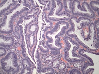 Colon adenomatous polyps are associated with DNA changes in the lining of the colon.